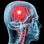 Vestibular / Concussion